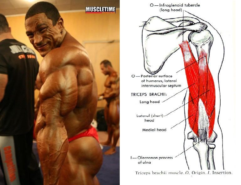 triceps roelly winklar